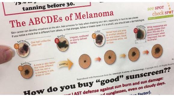 Skin Cancer Education & Prevention